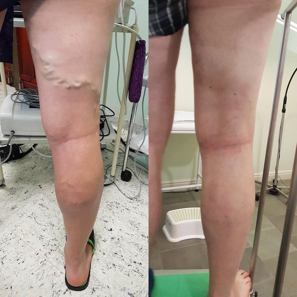 Lézeres visszérműtét (EVLA) A lábak visszértágulata műtét előtt és után