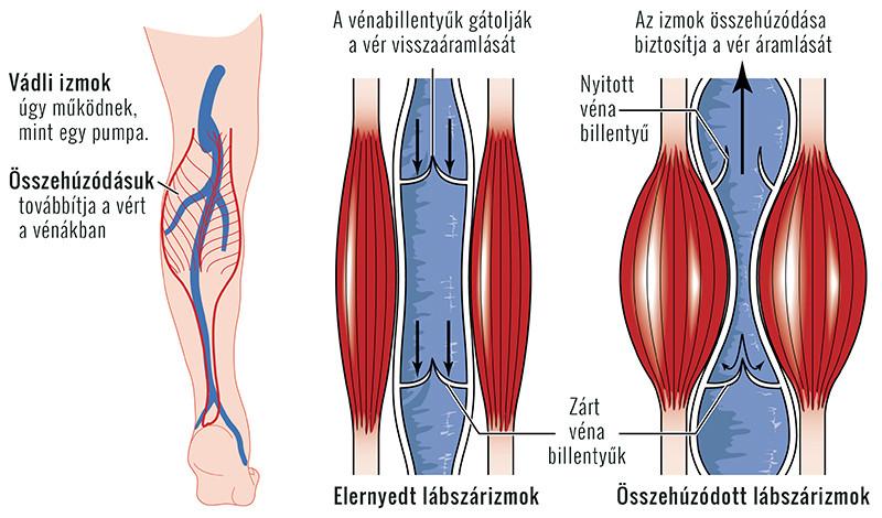 visszér a vérrög jelei láb készülék visszér ellen