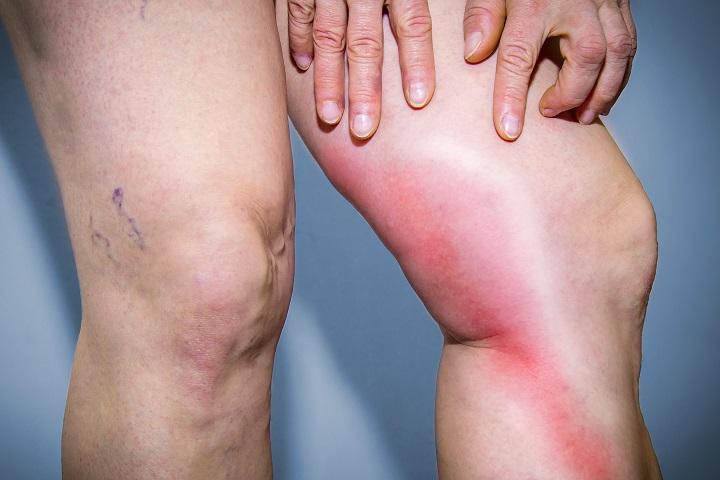A visszerek eltávolítása a lábakon a kalugában. Mi a betegség?