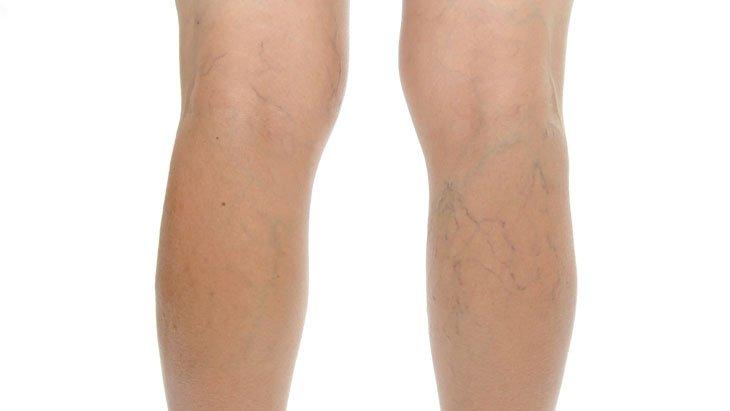 visszér a láb kezelésében