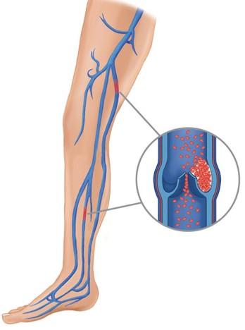 lehetséges-e hormonális alkalmazást visszér ellen visszér és alacsony hemoglobinszint
