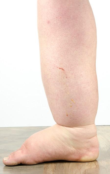 a visszerek jelei a lábakon