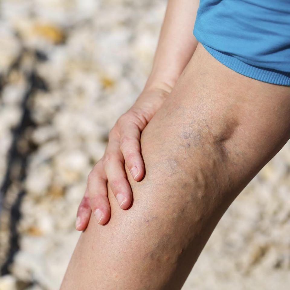 A varikozus piócák károsítják