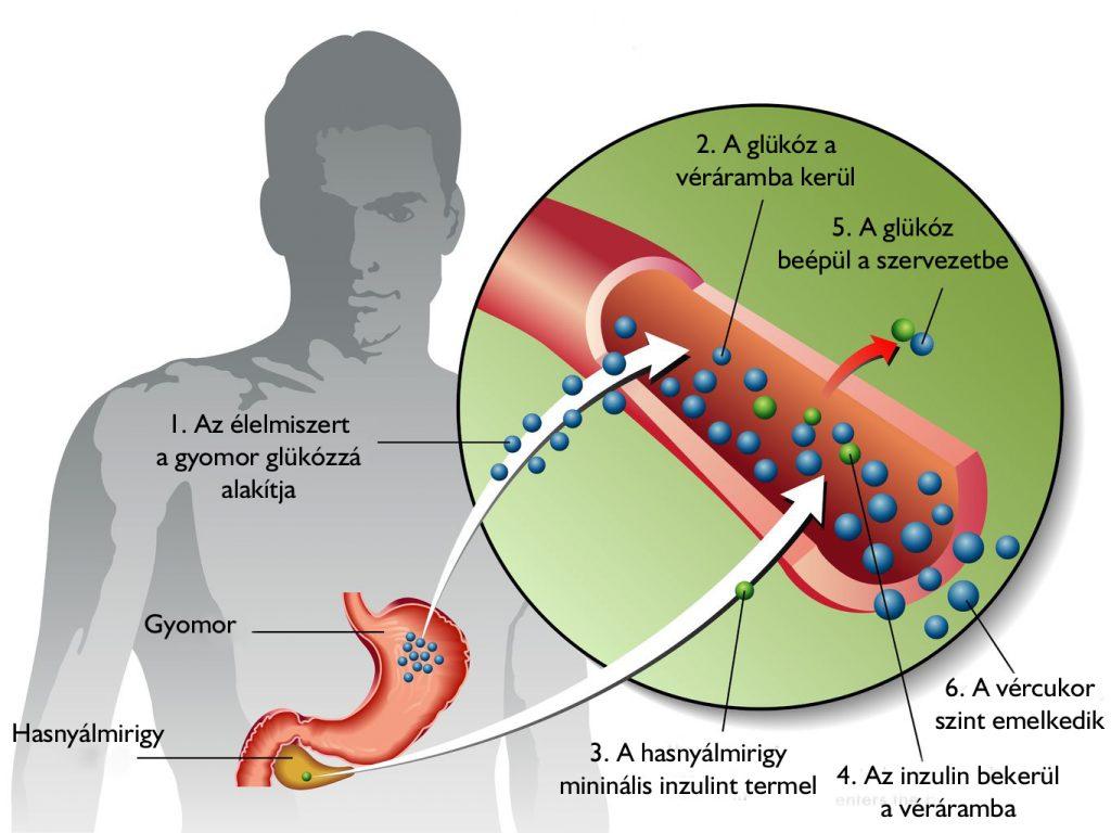 Vélemények a varikózisos vénák eltávolításáról. A visszér káros a lábon