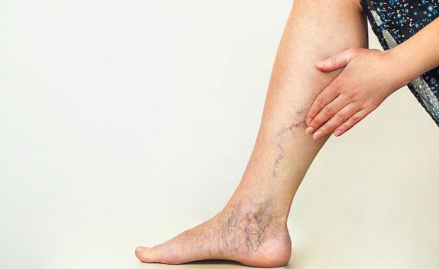 húzódó fájdalom a lábban visszérrel