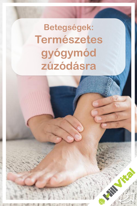 visszér trombózis népi gyógymódok