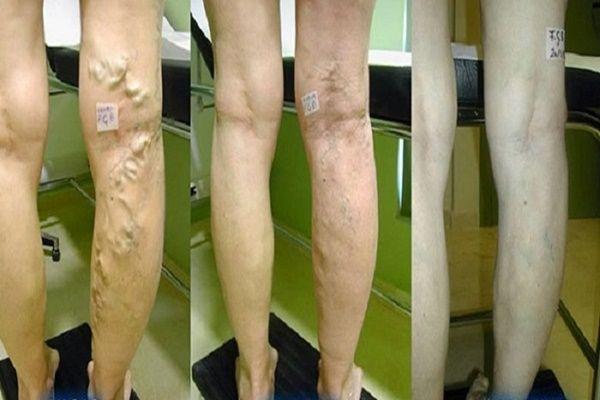 mit kell megvédeni, ha visszér a lábak visszérbetegségei okozzák a betegséget