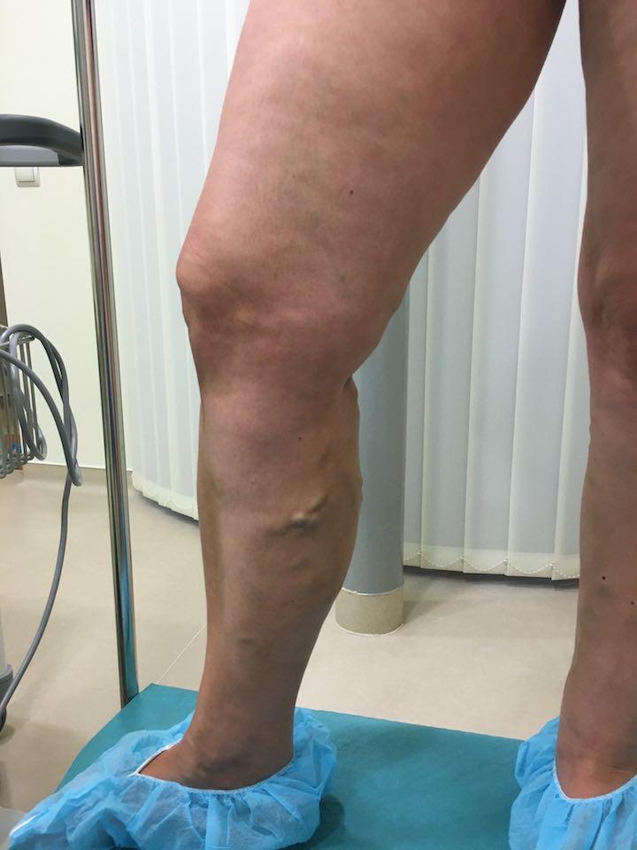 lábak a visszér kezelése előtt és után