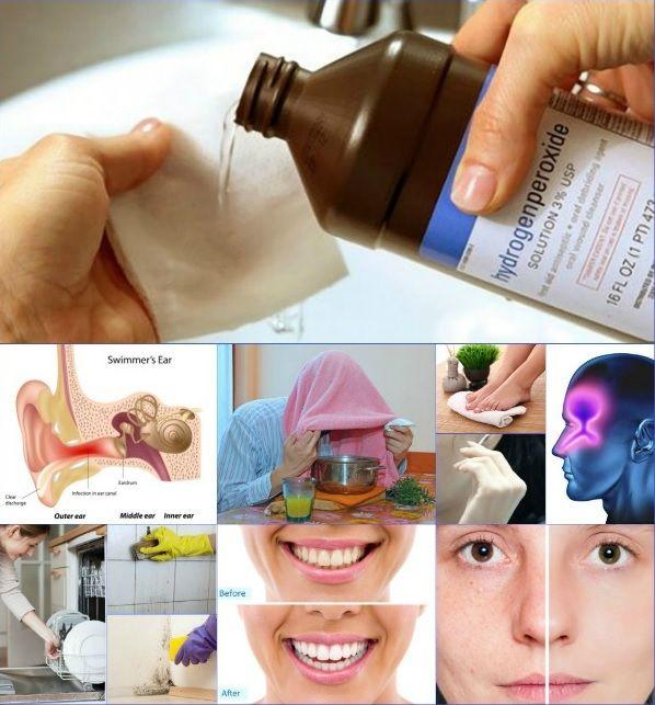 hidrogén-peroxid külsőleg visszeres visszeres fájdalom alternatív kezelés