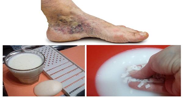 alternatív kezelés a visszerek a kezeken