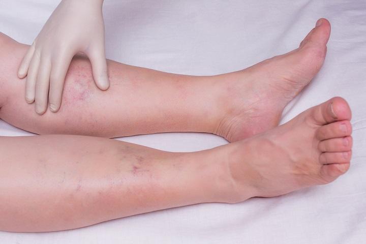 A lábak duzzanata bőrbetegségekkel