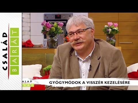 Szkleroterápia (sclerotherapia) - Dr. Sepa György érsebész