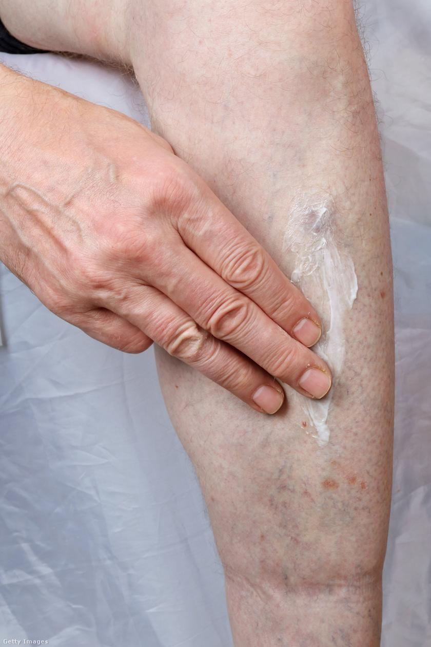 A bőr színének változása visszerekkel, Vénás és artériás lábszárfekélyek