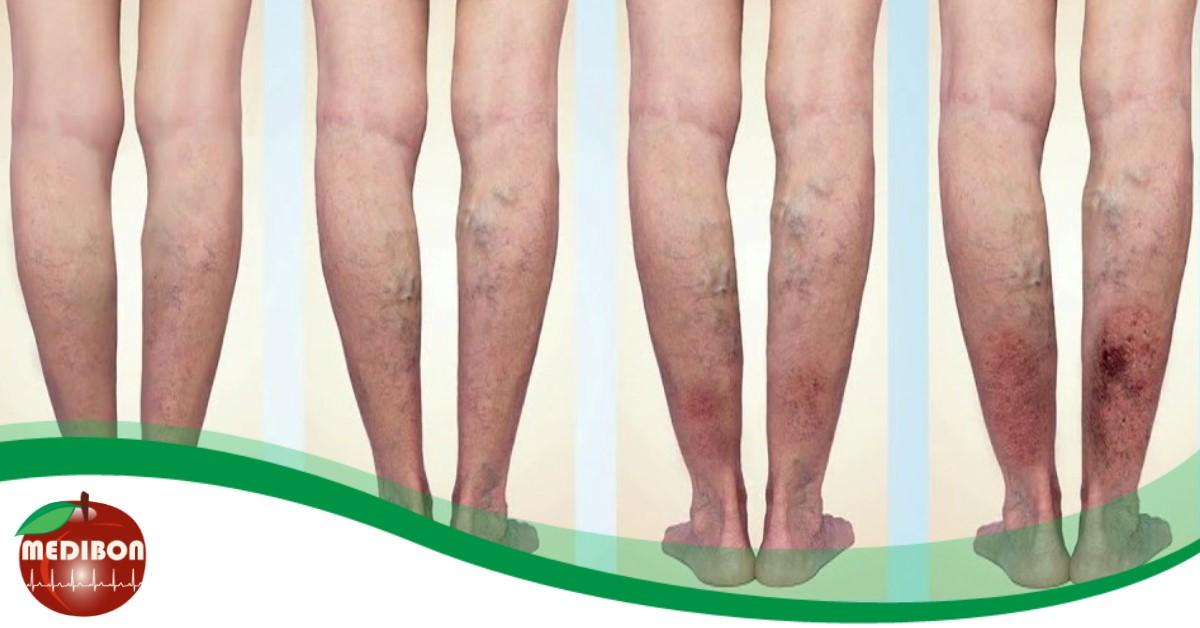 visszér a lábakon, annál jobb kezelni mi a visszér trombózis