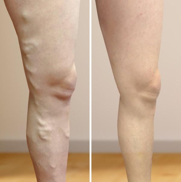 veleszületett visszerek a lábak