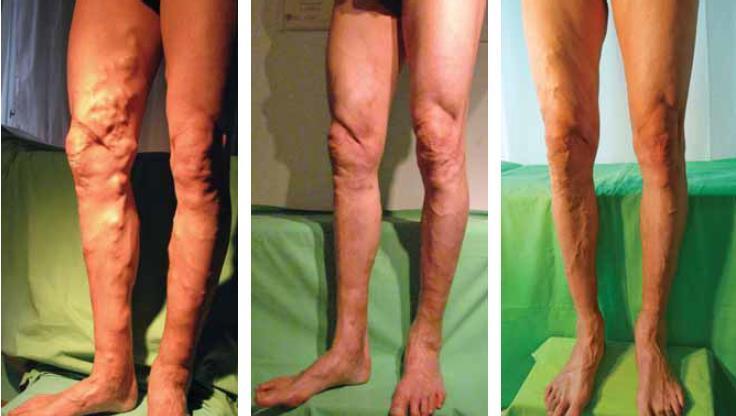 visszér osteopath kezelése