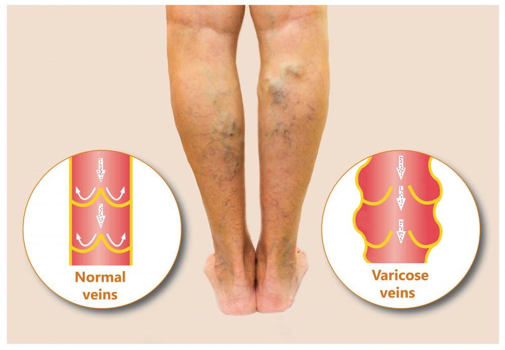 visszér és a láb ödéma elleni gyógyszerek hogyan lehet lelassítani a visszéreket