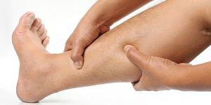 Visszerek égő fájdalom a láb