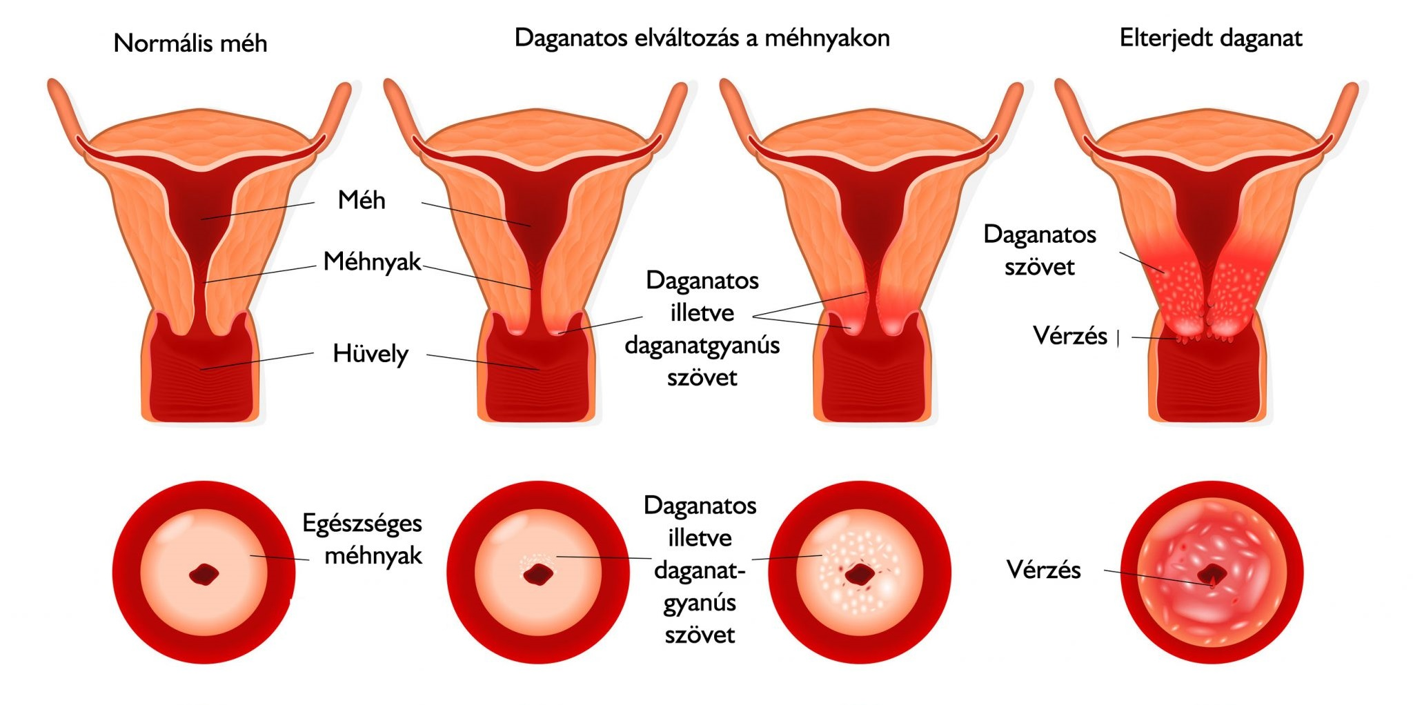 szülés és a kismedence visszérgyulladása