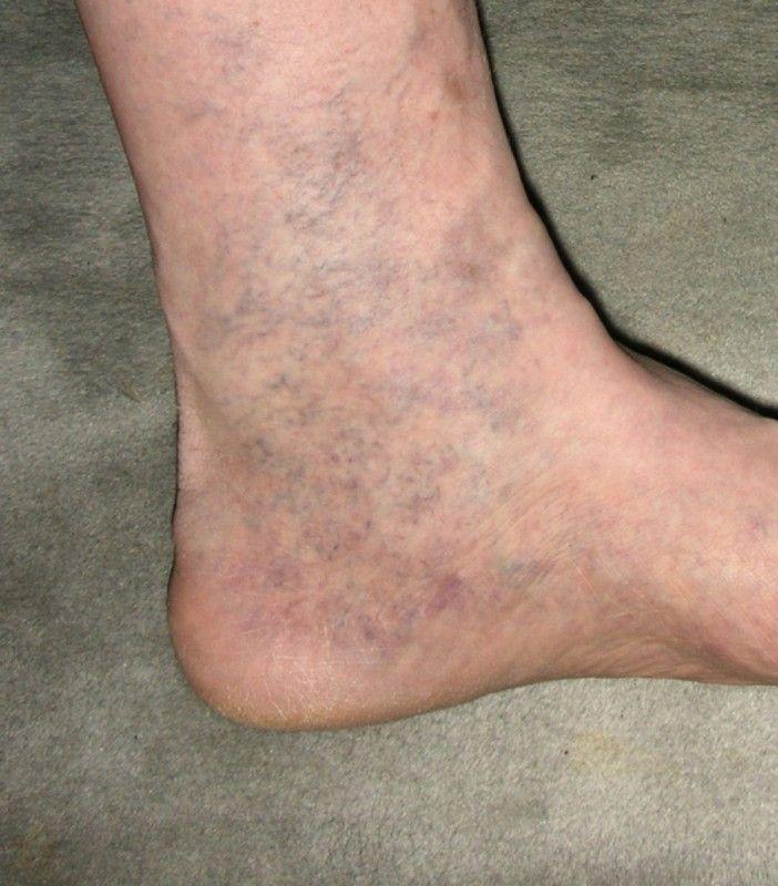 a felső lábak visszér szalicilsavas kenőcs visszér ellen