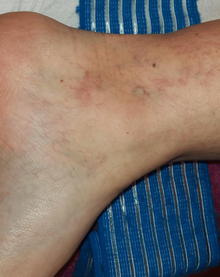 visszérműtétet nevezzük lábizmok visszerek