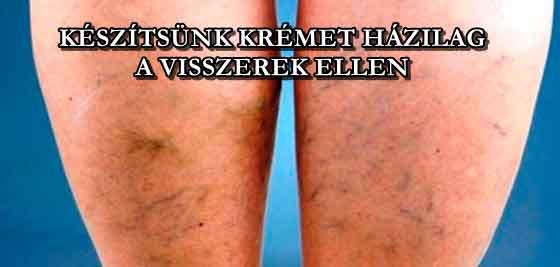 a lábak súlyos visszérrel mi a visszér trombózis