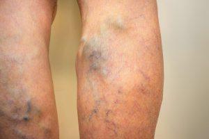 a lábak varikózisának okai és megelőzése visszér és a láb ödéma elleni gyógyszerek