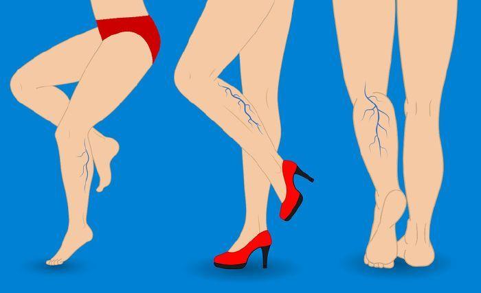 foltok a lábakon a visszértágulatoktól visszér és fehérje étrend