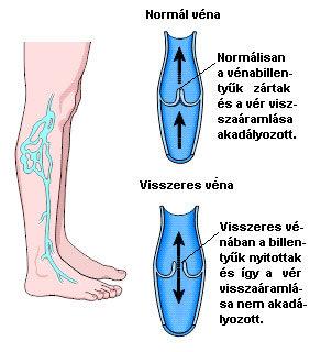 visszér a lábán a térd közelében visszérrel kapcsolatos