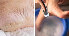 visszér a lábak piócák a lábak belső visszér-kezelése