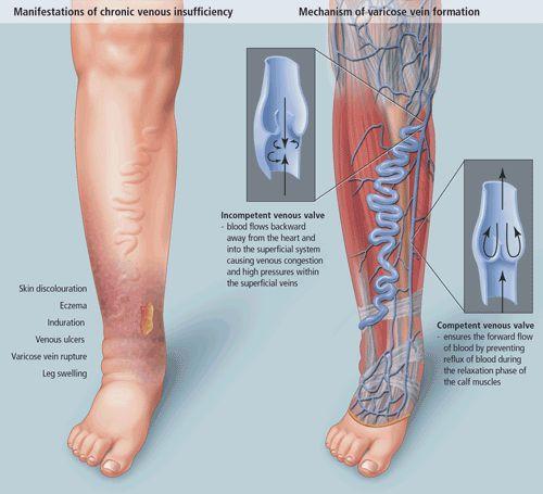 Gyermekeknél fellépő helminták tünetei és kezelése - Pinworm pszichoszomatika felnőttkorban