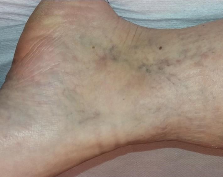 visszér műtét két lábon