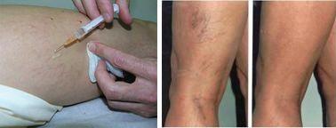 visszér okai és kezelése népi gyógymódok Muller visszeres műtéte
