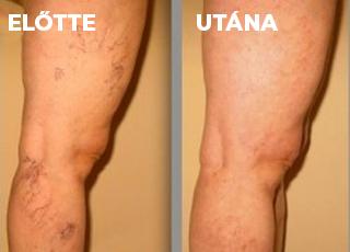visszér a lábakon a bőr alatt visszér szédülés