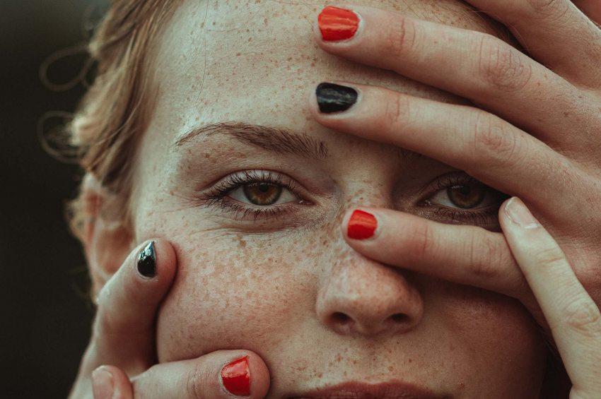 visszérbetegségből származó hipnózis a kismedence visszértágulata szülő nőknél