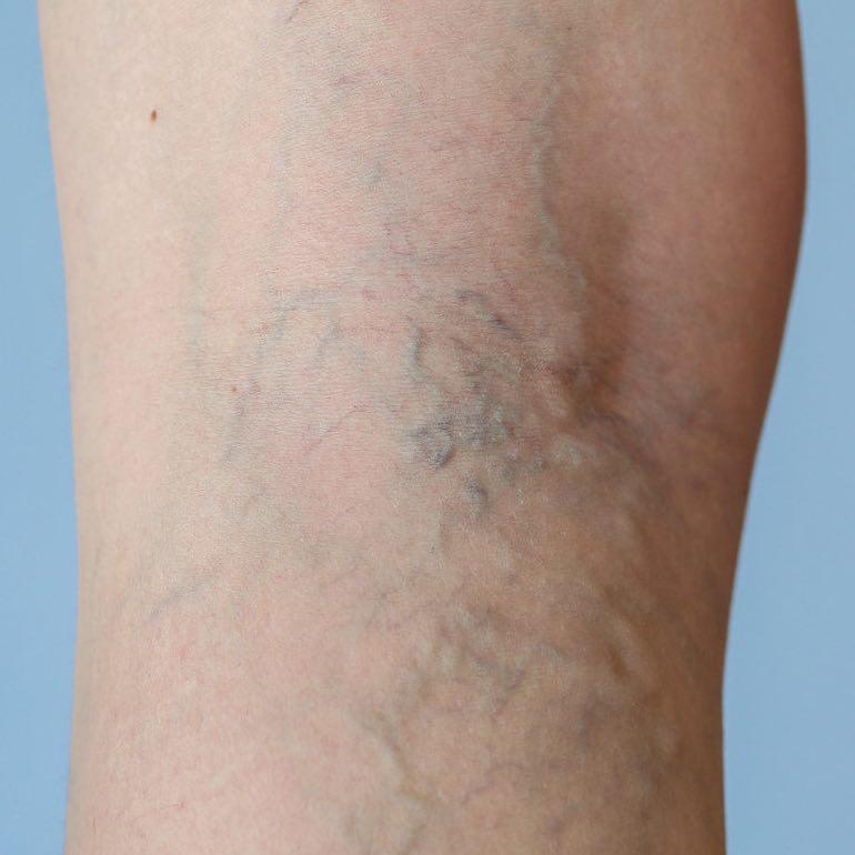 videoműtét a visszeres lábakon