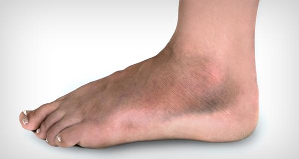 ortopéd fehérnemű lábak visszér kezdő visszér hogyan lehet megszabadulni