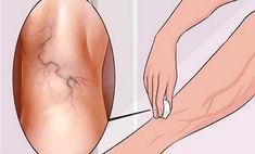 A medencefenék visszeres kezelése
