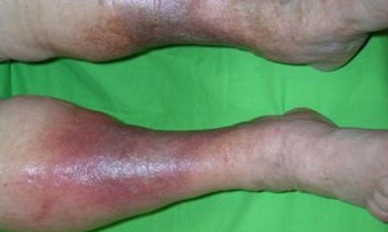 a lábakon lévő ekcéma kezelése visszeres