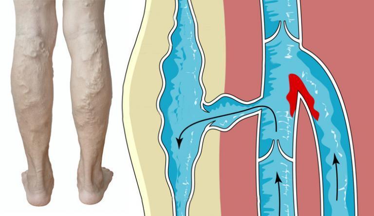 Síró sebek a lábakon visszérrel
