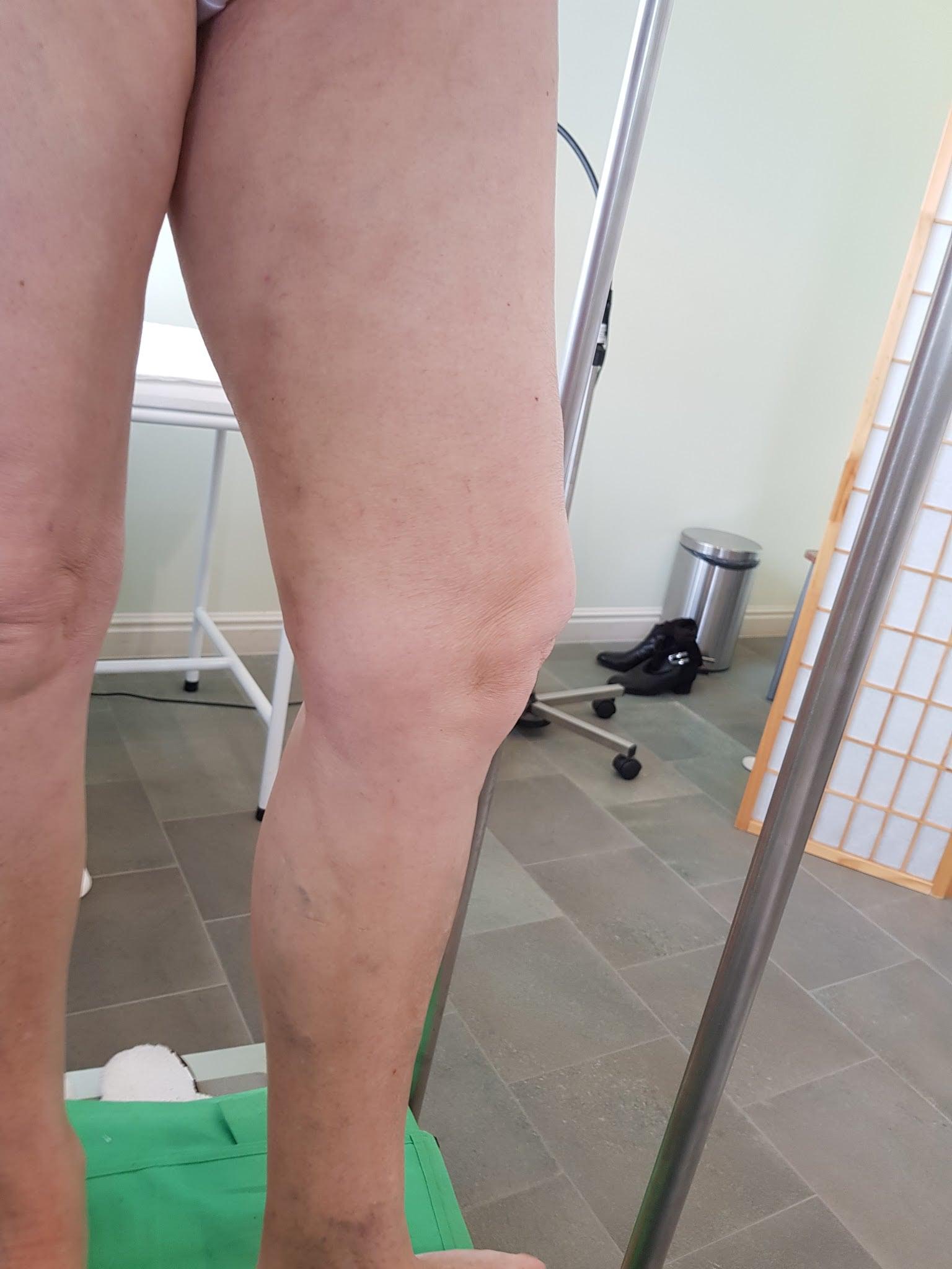 dudorok visszérműtét után