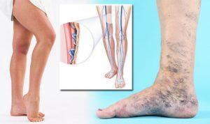 Visszérgyulladás 9 oka, 6 tünete és kezelése [teljes leírás]