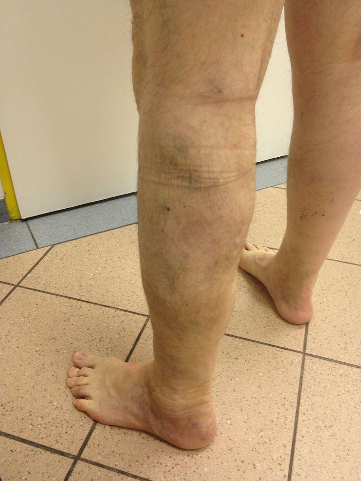 visszér kenőcs népi gyógymód a lapos lábtól visszér