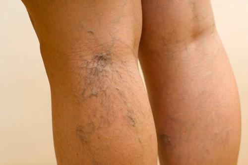 lehet-e visszérrel szaunázni vaszkuláris visszér a lábakon