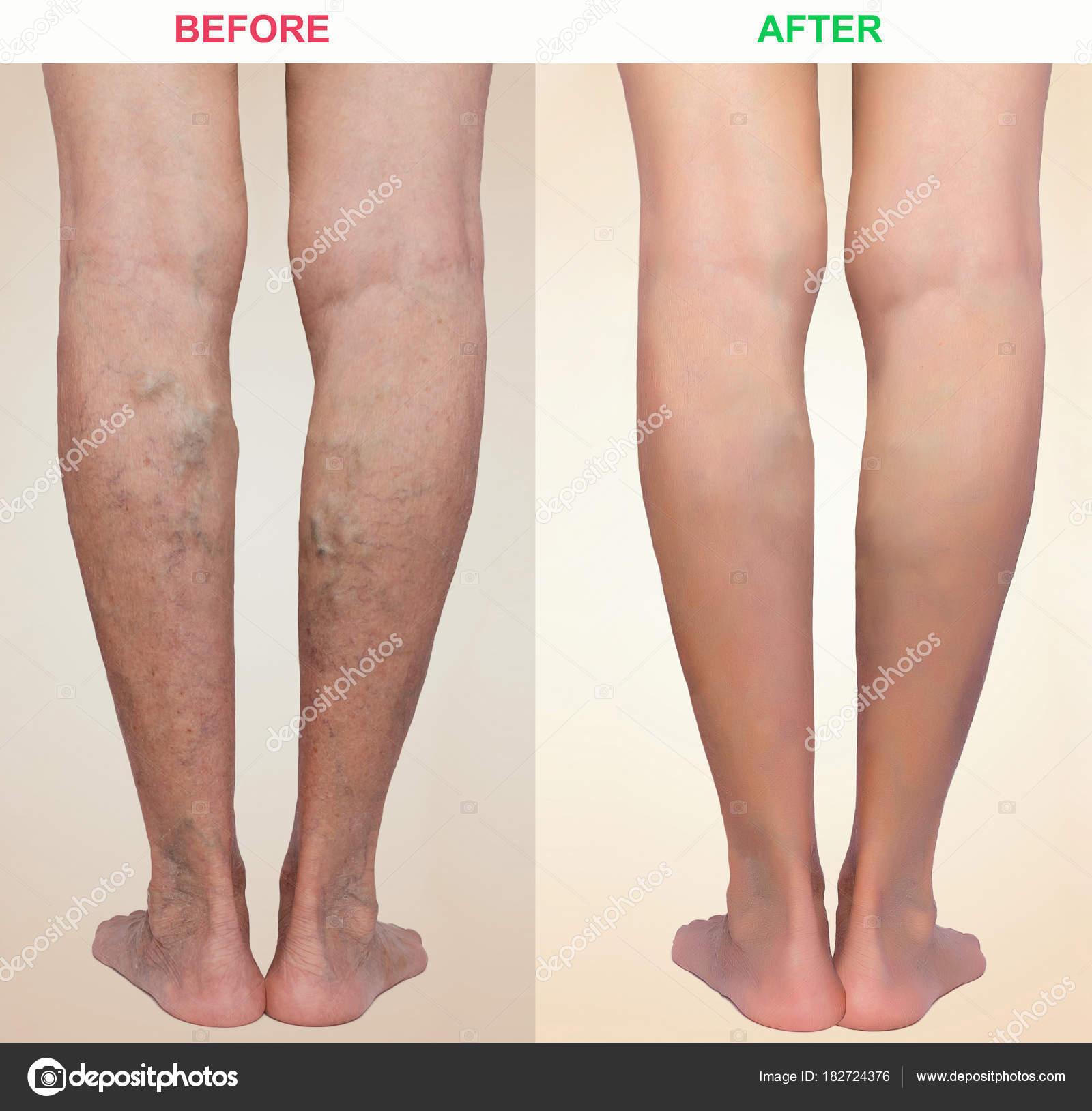 Visszér a lábakban, lézeres kezelés