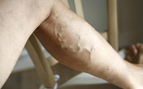 a lábak varikózisának kezelése népi módszerekkel
