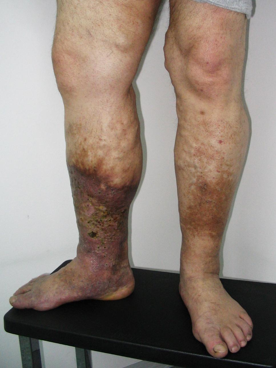 az alsó lábszár és a comb visszér
