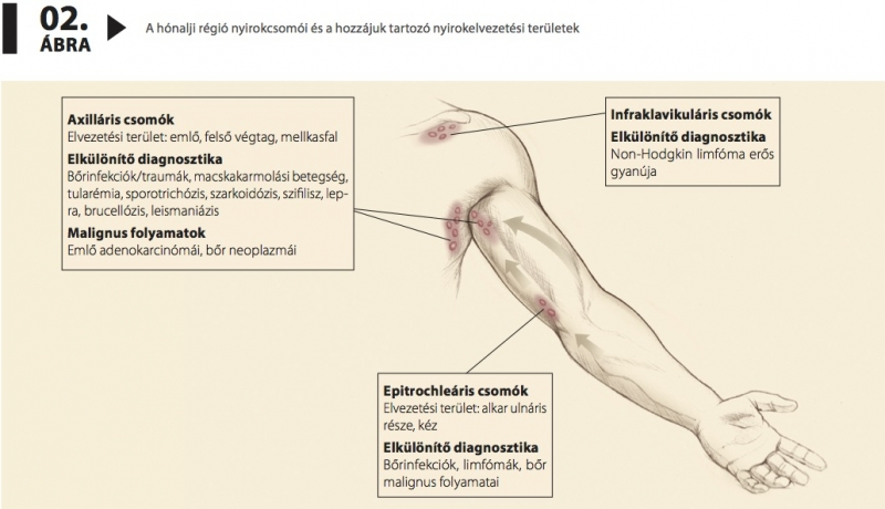 Alsó végtag lymphedema - Aritmia September