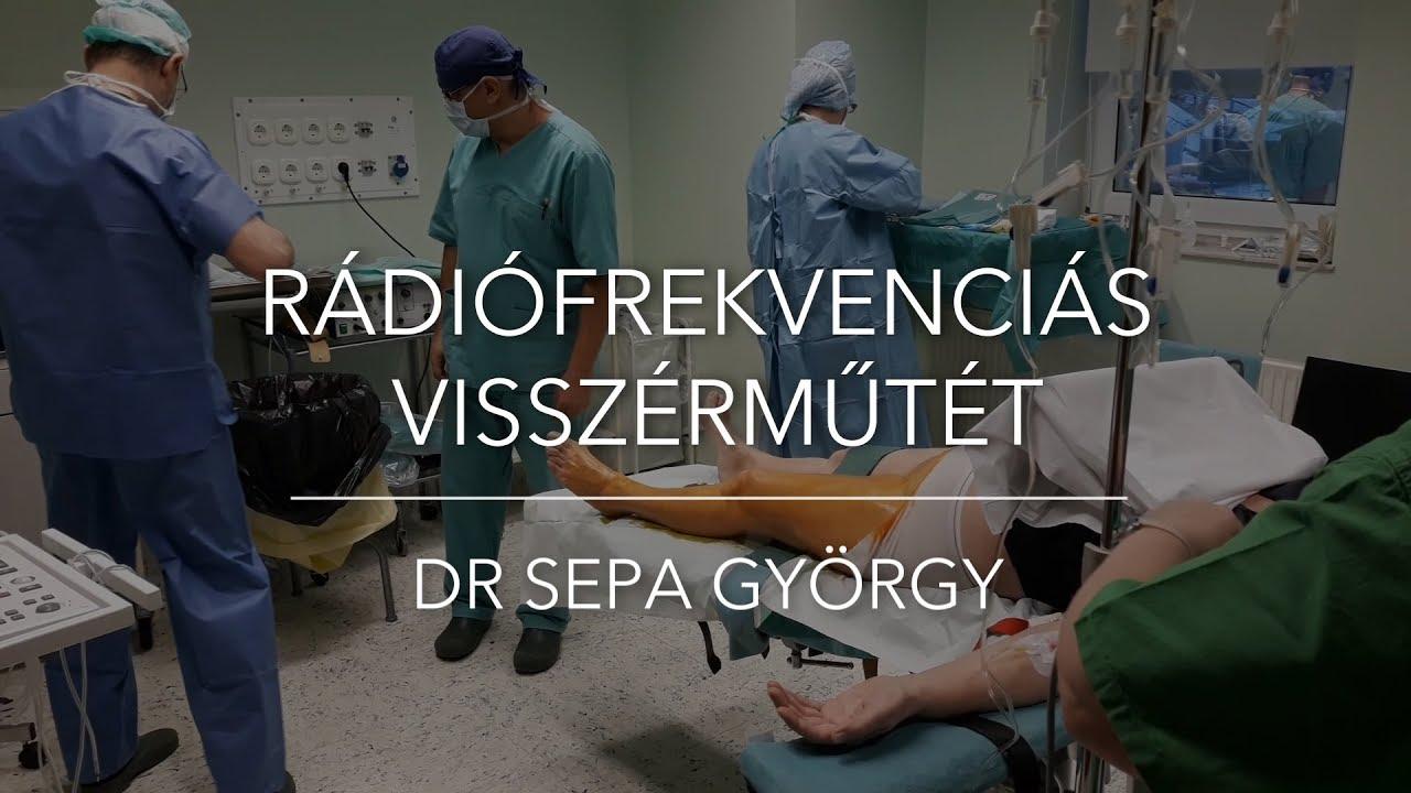 video visszérműtét