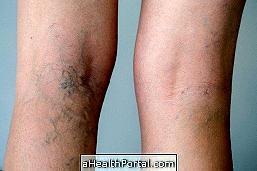 tömörítés műtét után a varikózisos lábaknál